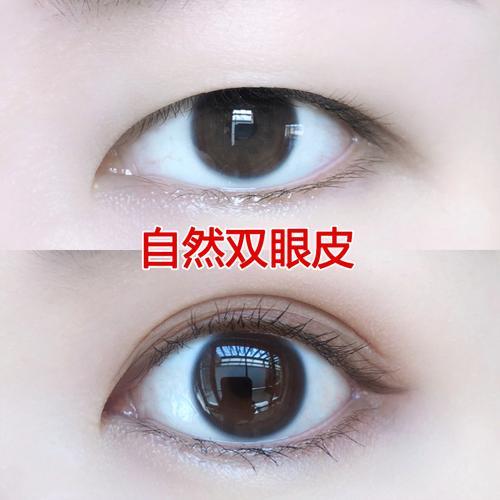 【大眼精华肿泡眼】开眼角单皮变双眼皮自然扩眼