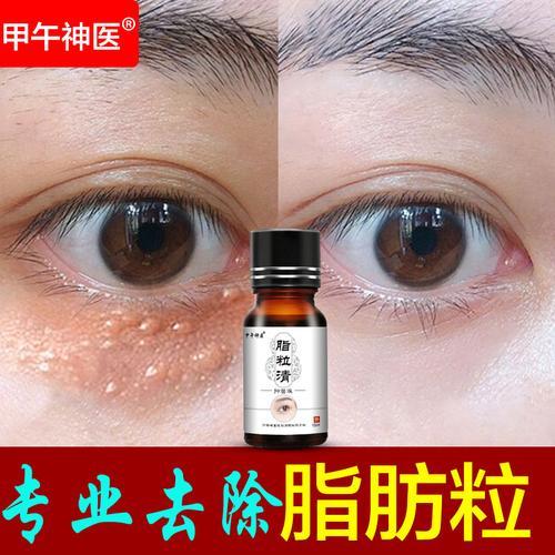 去脂肪粒眼部去除神器汗管粒油脂粒专业祛除脸部脂肪